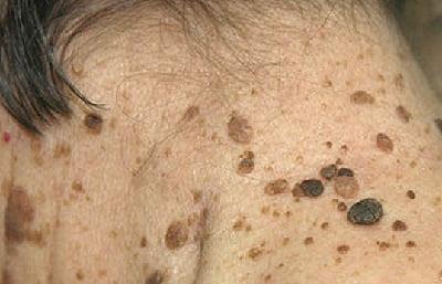Кератоакантома кожи - классификация, причины, лечение