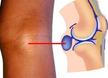 Изображение - Кисты беккера коленных суставов Kista-bejkera-simptomy
