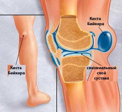 Изображение - Кисты беккера коленных суставов Kista-bejkera