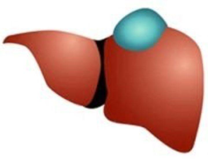 Как лечить поверхностный гастрит бульбит