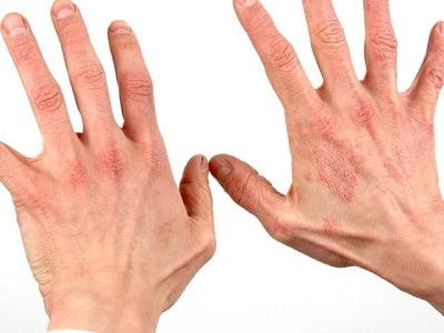 Контактный дерматит симптомы и лечение фото, мази и дома