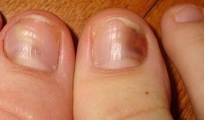 Эффективное лечение грибка ногтей на ногах народными средствами, в домашних условиях
