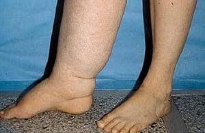 Изображение - Лимфостаз голеностопного сустава Limfostaz-konechnostej