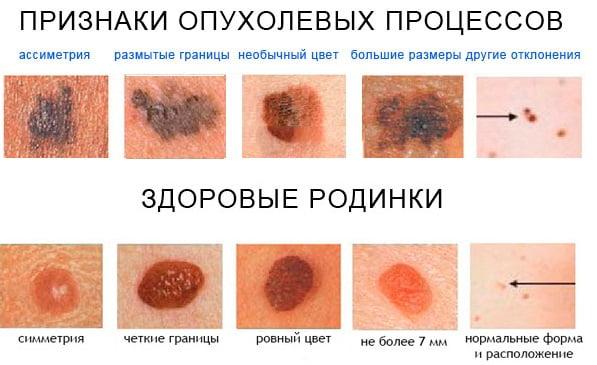Как выглядит вторичная меланома