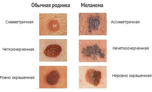 Меланома на коже руки thumbnail