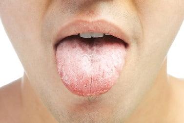Молочница у мужчин - причины, симптомы и лечение