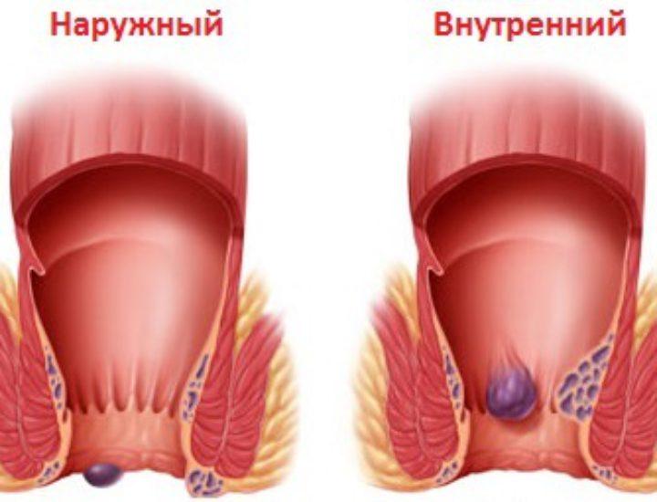 Боль в заднем проходе у женщин мужчин причины и лечение