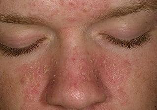 Кожный дерматит фото причины лечение