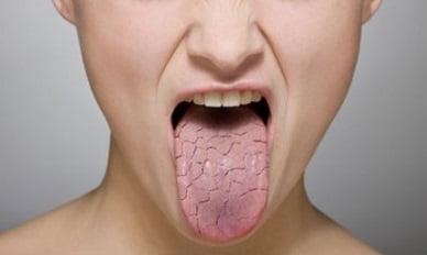 Синдром Шегрена: симптомы, лечение, причины