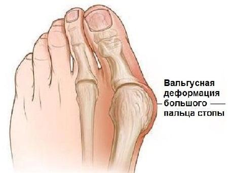 Вальгусная деформация большого пальца стопы. Лечение вальгусной деформации первого пальца стопы