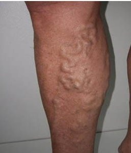 Варикозное расширение вен на ногах: причины, лечение.