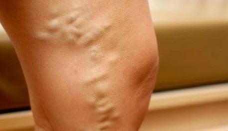 Варикоз нижних конечностей: симптомы и лечение