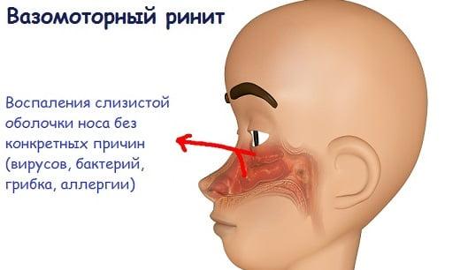 Вазомоторный ринит симптомы и лечение у взрослых