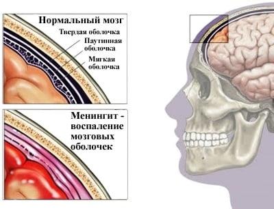 Противовирусные препараты от менингита