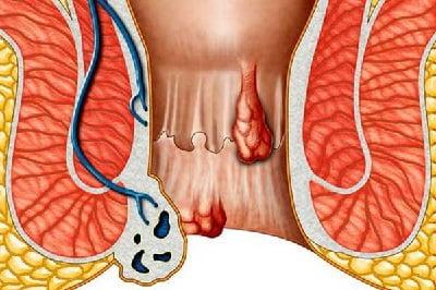 Внутренний геморрой симптомы у женщин лечение