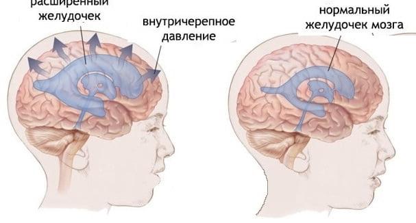 Лечение внутричерепной гипертензии у взрослых — Полезный Блог