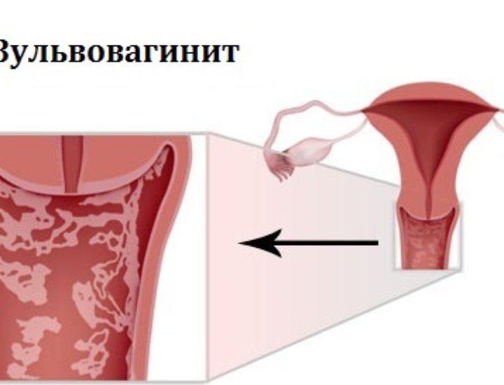 Вульвовагинит