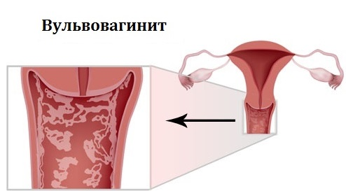 Последствия вульвовагинита