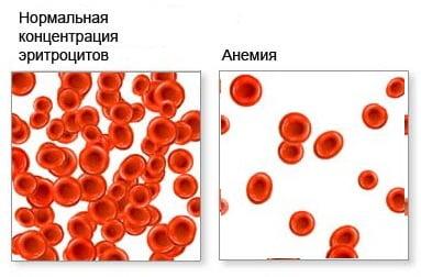 Железодефицитная анемия: симптомы, причины и лечение. Что такое железодефицитная анемия и как ее лечить.