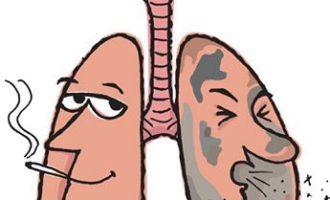 Как лечить бронхит курильщика