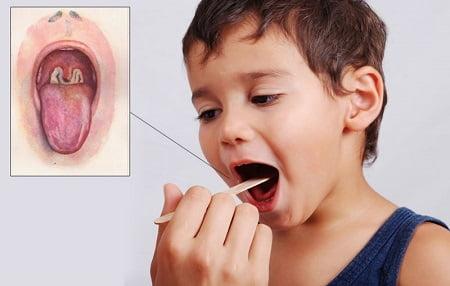 Причины, симптомы и лечение дифтерии. Дифтерия: фото, симптомы, профилактика дифтерии у детей и взрослых 74287 1