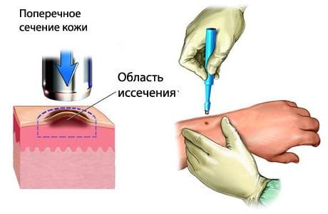 Что такое меланома как она выглядит thumbnail