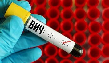 Ранние симптомы ВИЧ инфекции, инкубационный период