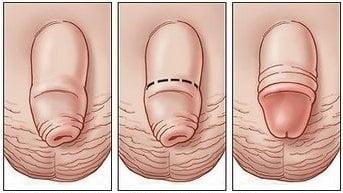 Половой член открытие головки полностю
