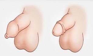 Фимоз у мальчиков: симптомы, причины, когда требуется операция /