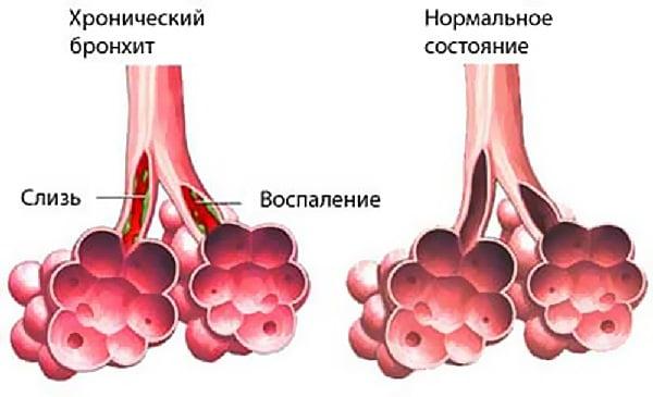 Хронический бронхит и заболевание печени thumbnail