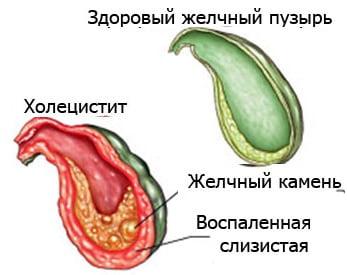 Холецистит: симптомы, лечение, диета. Как лечить холецистит