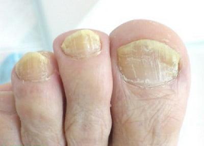 Как лечить онихомикоз ногтей на руках