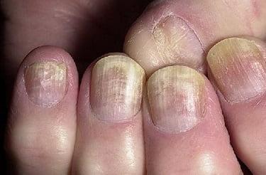 Таблетки от грибка ногтей на ногах: список лучших препаратов против онихомикоза