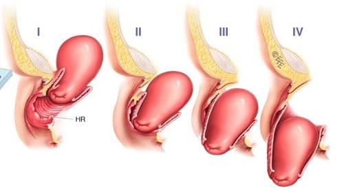 Опущение матки – симптомы и лечение, что делать?
