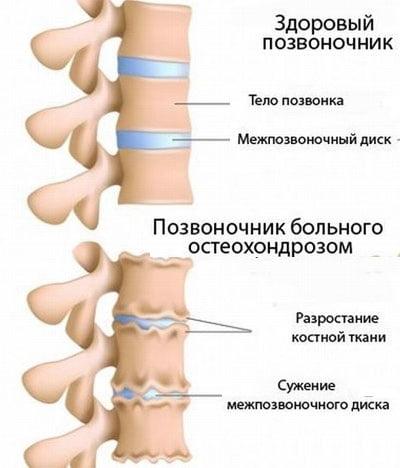 Степени развития шейного остеохондроза