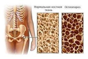 Остеопороз костей причины патогенез симптомы диагностика лечение