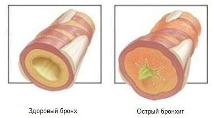 Острый бронхит - симптомы, лечение, острый обструктивный бронхит у детей