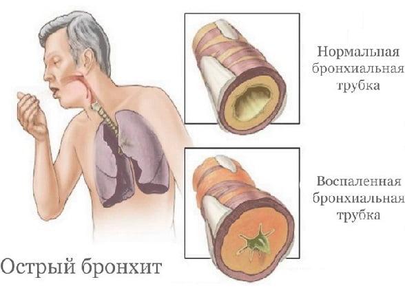 Острый бронхит курс лечения thumbnail