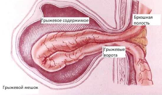Симптомы паховой грыжи у мужчин
