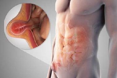 Грыжа паховая у мужчин лечение и симптомы: фото и видео