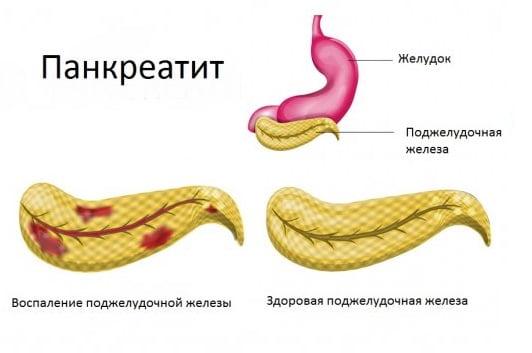 Как лечить мозги при панкреатите