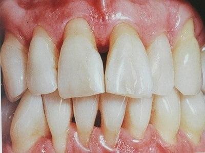 Какой врач лечит пародонтоз — Зубы