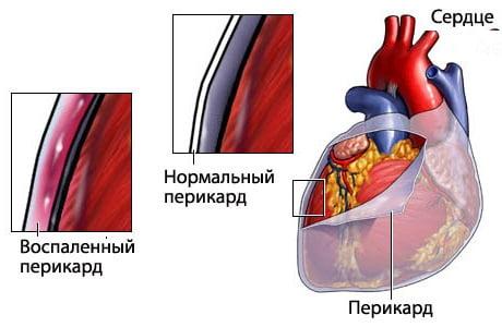инфекционный перикардит