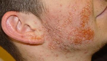 Пиодермия что это за болезнь 26