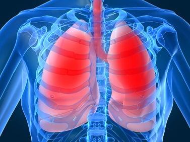 Что за болезнь пневмония