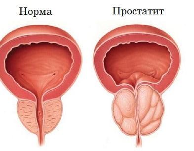 Воспаление яичников у женщин - лечение в домашних условиях народными средствами