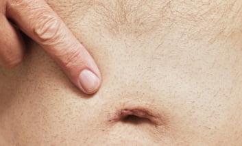 Признаки пупочной грыжи у женщин симптомы