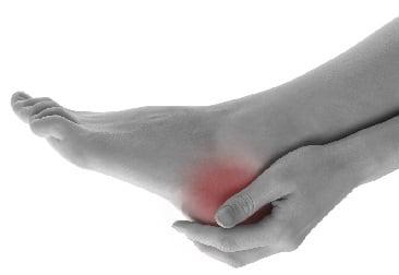 Что такое шпора на пятке симптомы