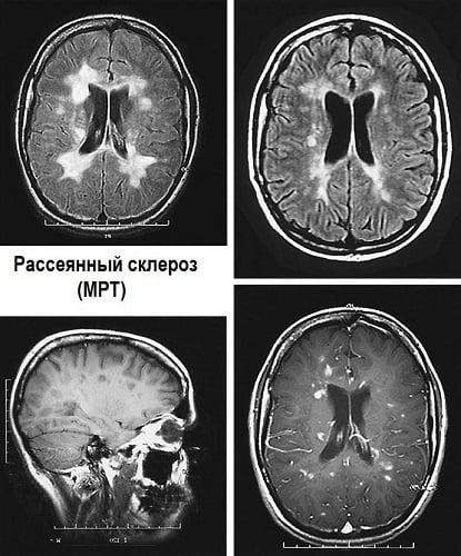 Рассеянный склероз натуральные средства. Что помогает при рассеянном склерозе