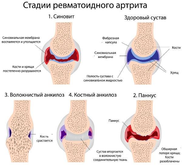 Ревматоидный артрит симптомы лечение и диагностика